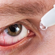image of a dry red irritated eye.