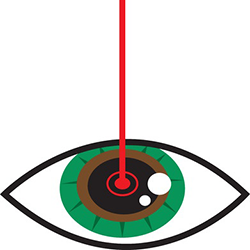 diagram of a laser treating the eye