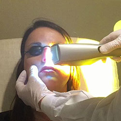image of person having an ipl treatment