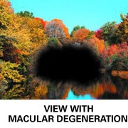 how macula degeneraton affects your central vision